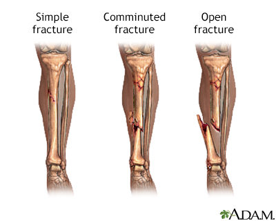 Bone fracture repair - series
