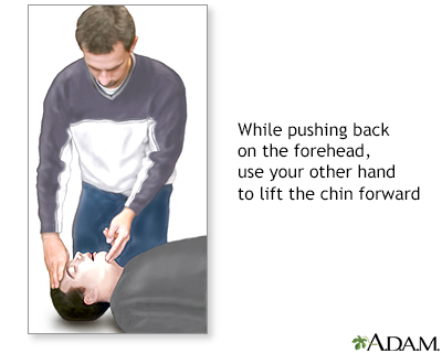 CPR - adult - series