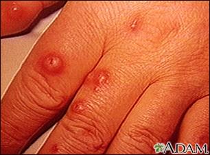 Cryptococcus, cutaneous on the hand