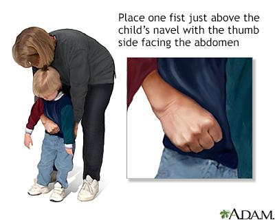 Heimlich maneuver on conscious child