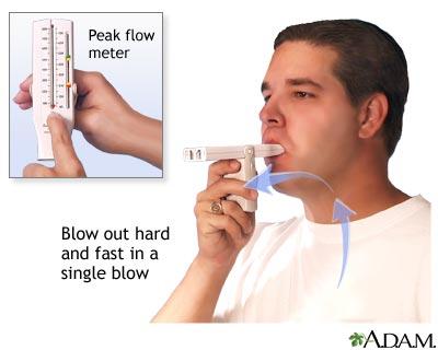 How to measure peak flow