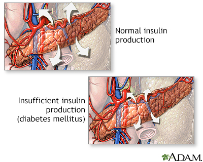 Insulin production and diabetes