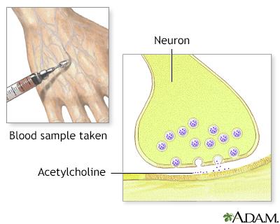 Cholinestrase test
