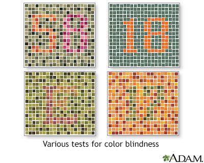 Color blindness tests