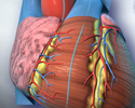 Cardiac catheterization
