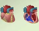 Congenital heart defects (CHD) overview