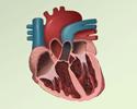 Ventricular fibrillation and tachycardia